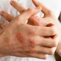 Eczema, o boala mult mai grea decat am fi crezut